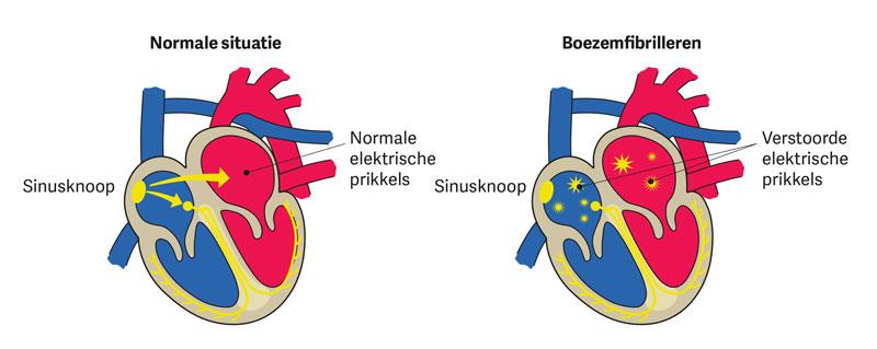 normale ademhaling bij ouderen